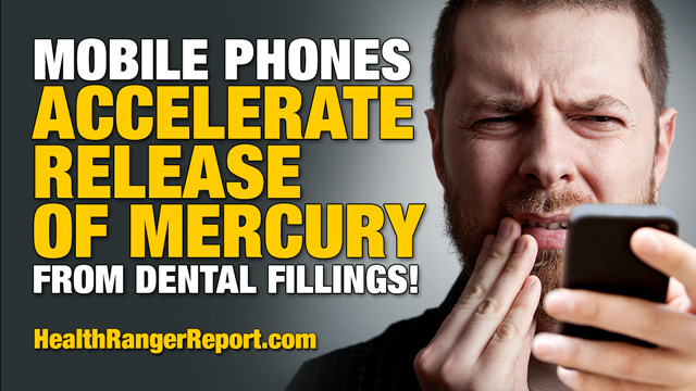 SCIENCE SHOCK: Electromagnetic fields from mobile phones accelerate mercury release from dental fillings